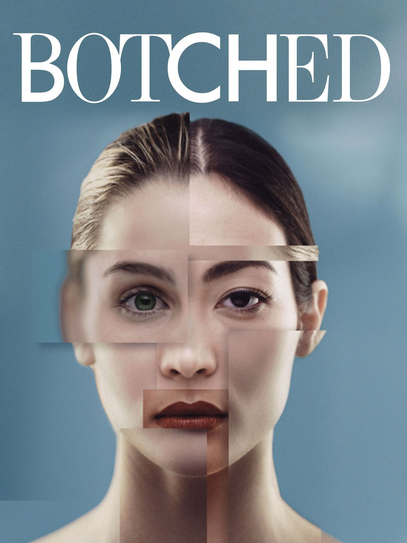 Botched - Season 5 Episode 12 - Breast Lumps and Empty Noses